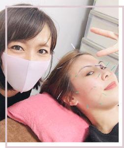 美顔鍼中の写真
